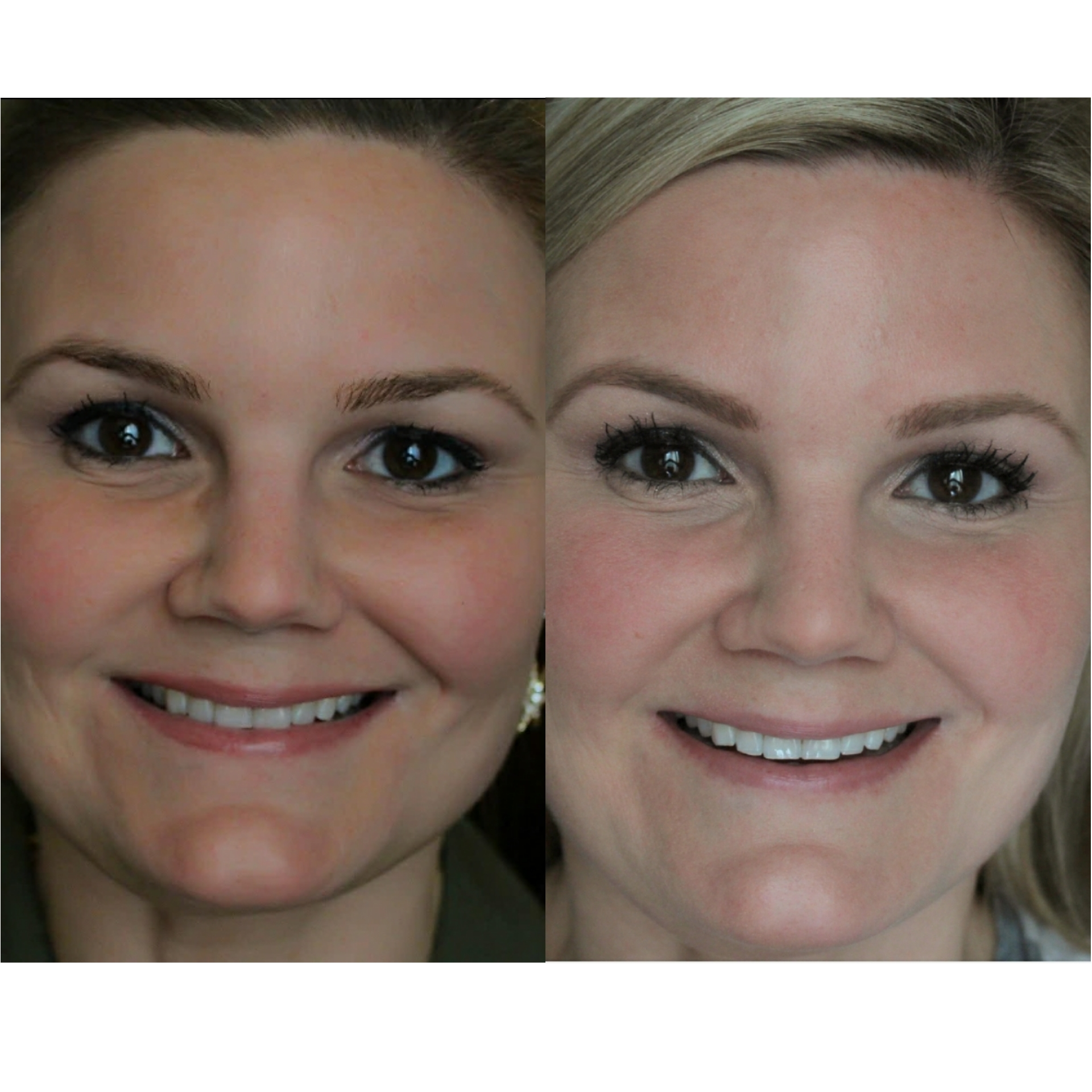 At-home-teeth-whitening-does-it-work-fabulouslyoverdressed